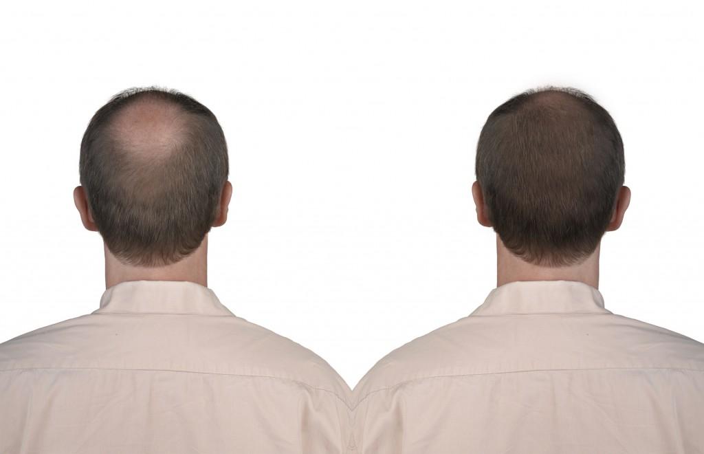 tricopigmentation homme chez Brigitte