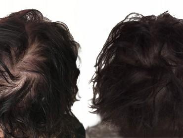 tricopigmentation femme naturelle